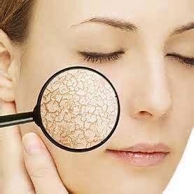 موارد ضروری ممانعت از خشکی پوست