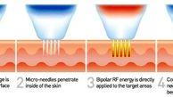 RF Fractional چیست؟