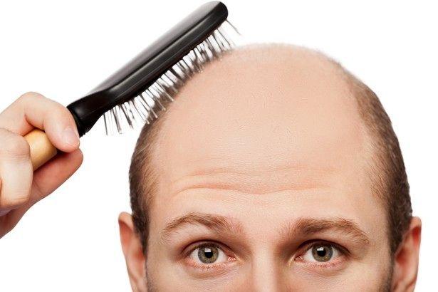 آیا ریزش مو یک بیماری است؟