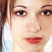 لک های صورت را با این روش درمان کنید