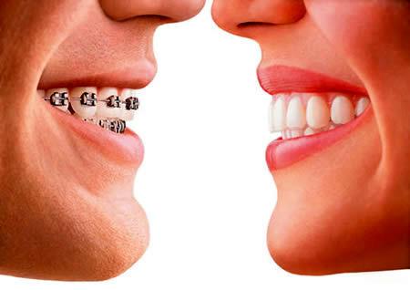 عوارض سفید کردن دندان