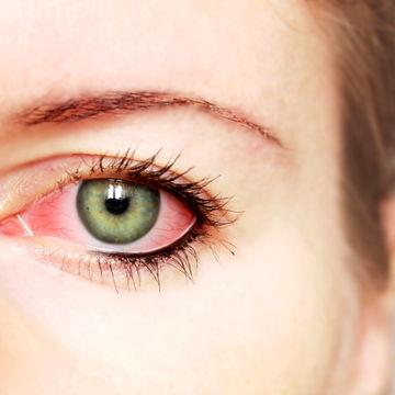 مبارزه با خشکی چشم