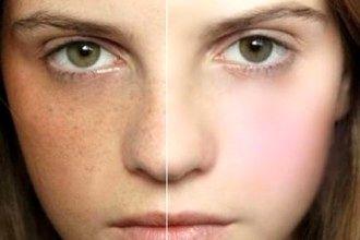 راهکارهای آرایشی و مراقبتی موثر برای محو کردن کک و مک