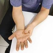 نفروپاتی(بیماران کلیوی)، یکی از عوارض بیماری دیابت