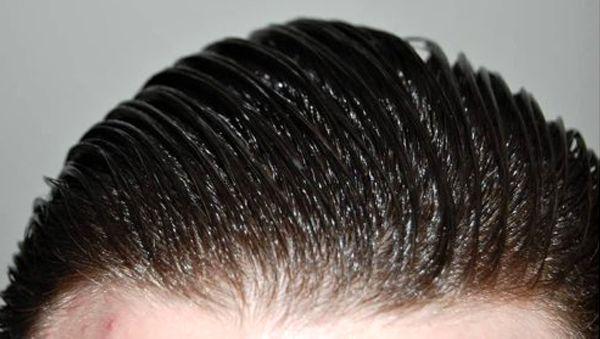 نکاتی درباره موهای چرب