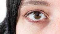 روش های طبیعی برای رفع سیاهی دور چشم
