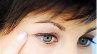 علل خشکی پوست پلک چشم