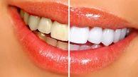 چه عواملی در سفیدی دندان نقش دارند