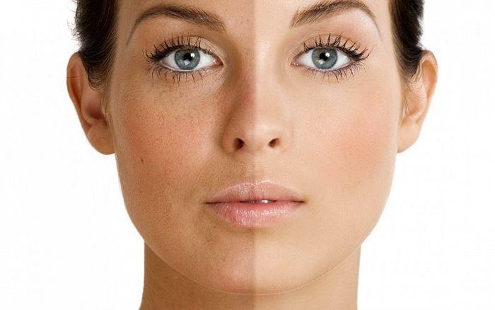 چگونه ماسک مناسب برای رفع دانه های سر سیاه پوست بسازیم؟