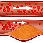 آیا ژنتیک عاملی موثر در افزایش کلسترول محسوب می شود؟