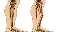 جلوگیری از پوکی استخوان از فواید مصرف امگا-3