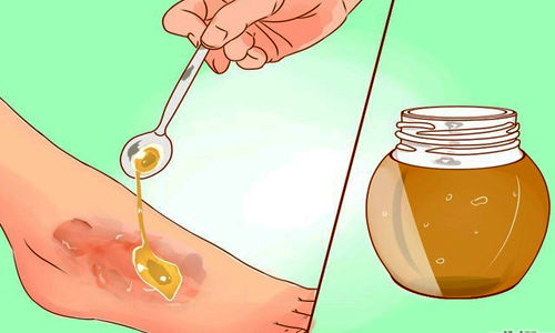 چگونه زخم ها با استفاده از عسل درمان می شود ؟
