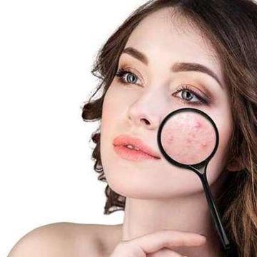 ماسک خانگی برای پوستی بدون آکنه