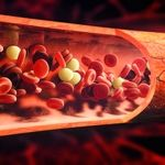 آیا مالون دی آلدئید و توتال اکسیداسیون استاتوسدر در گرفتگی عروق موثرند؟