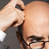 دکلره کردن موها یعنی چه و چه کاربردی دارد؟