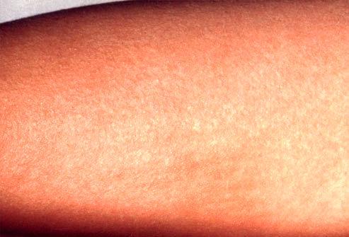 عفونت های پوستی چقدر شیوع دارند؟