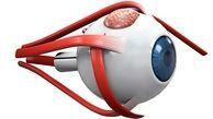 ژیمناستیک چشمها برای پیشگیری از جدا شدن شبکیه