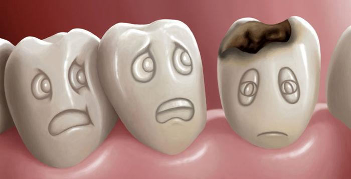 پوسیدگی و حفره دندان