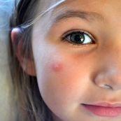 پنج راه حل مفید برای کاهش اثرات آزاردهنده ی نیش پشه