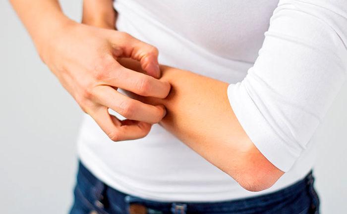 توصیه هایی برای درمان خارش بدن