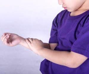 آرتریت شایع ترین بیماری در کمین کودکان و نوجوانان