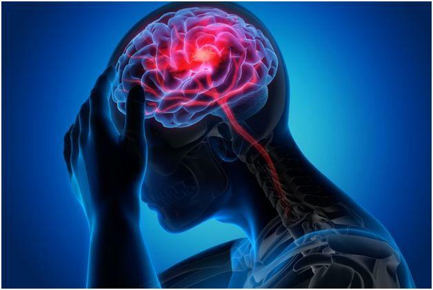 بهترین روش درمان میگرن در کلینیک سردرد تهران