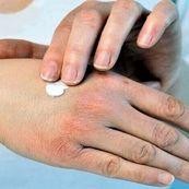 درمان خشکی پوست در دوران کرونا