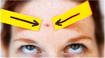 کارهایی که موجب افزایش آکنه روی پوست صورت خواهند شد