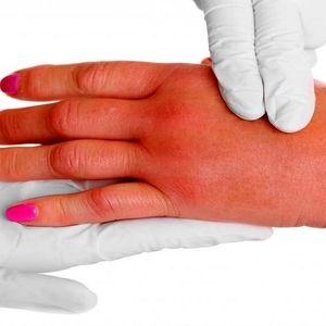 درمان خانگی برای تورم دست ها و پاها