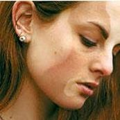 علل ایجاد لکه های سفید پوستی