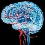 توصیه هایی برای پیشگیری از سکته ی مغزی