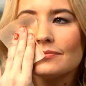 چطور از چربی بیش از حد پوست خلاص شویم