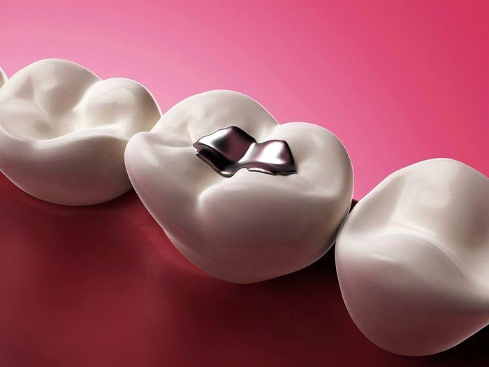 آیا مواد پرکننده دندانی حاوی نقره بی خطرند؟