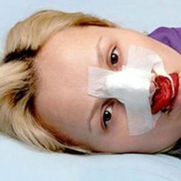 گوش این زن در بیمارستان به جای بینی عمل شد   + عکس