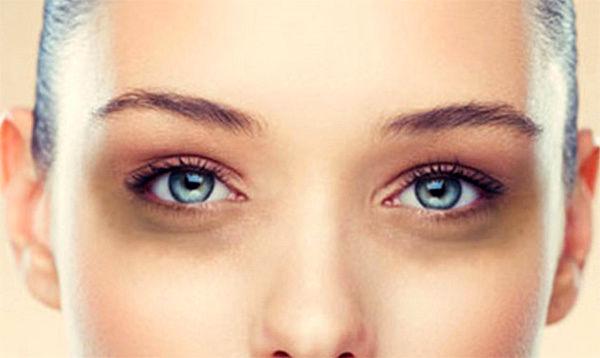 چگونه تیرگی دور چشم را از بین ببریم
