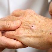 سرطان پوست و عوامل ابتلا به آن