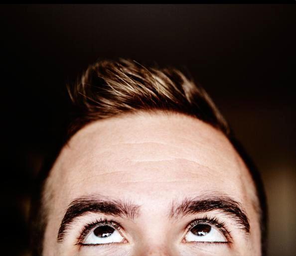 عوامل موثر در ریزش موی سر