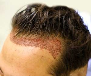 جلوگیری از ریزش مو بعد کاشت مو و ابرو
