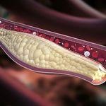 میزان کلسترول افراد با توجه به سن آنها به چه مقدار باید باشد؟