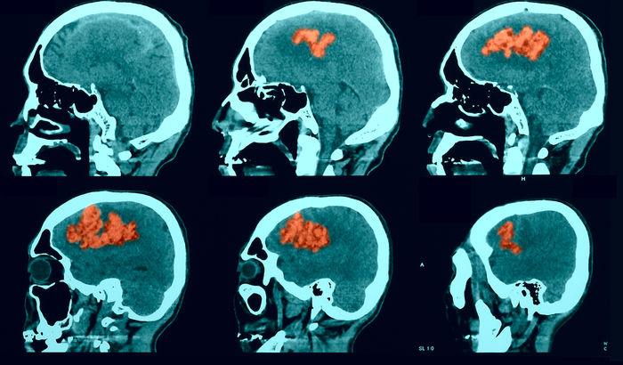 انواع سکته ی مغزی