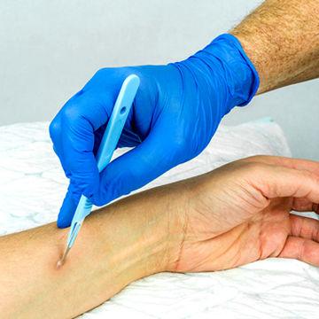 روش درمان آبسه پوستی