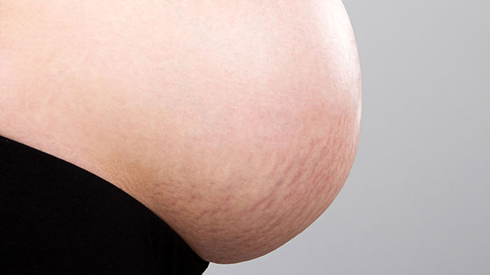 چگونه از ترک های پوستی در دوران بارداری پیشگیری کنید ؟