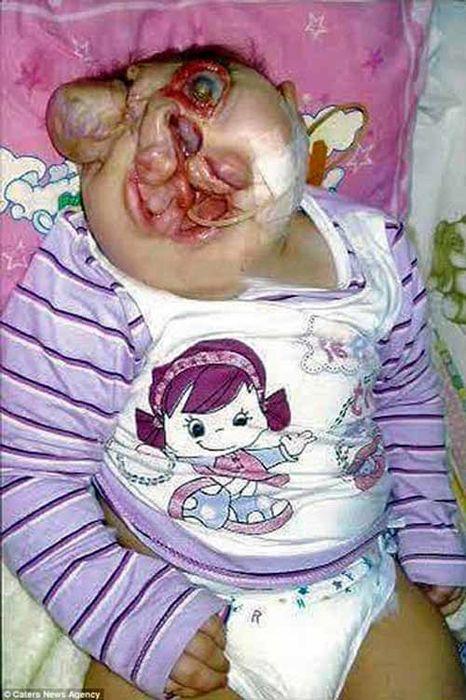 قیافه عجیب و بیماری بسیار ترسناک این دختر (عکس)