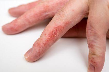 درمان التهاب پوستی تماسی