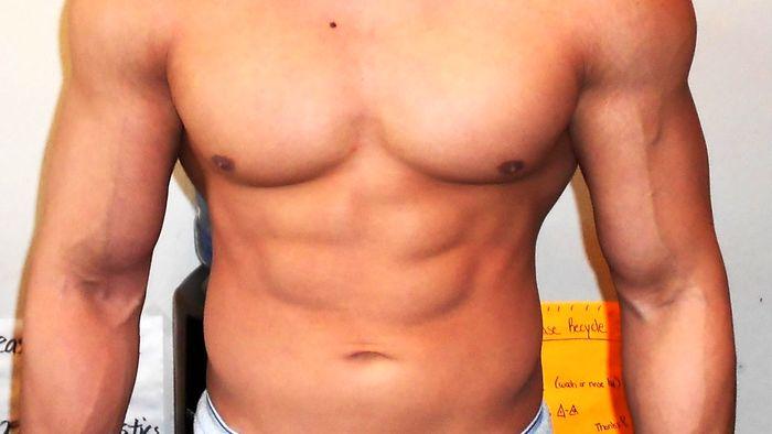 ایمپلنت عضلات سینه ای آقایان
