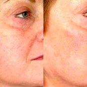 روش های درمان واریس پوست صورت