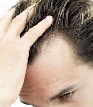 با رعایت این نکات، مانع از ریزش موها شوید
