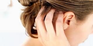 روش های مقابله با خارش پوست سر و ریزش مو ناشی از آن