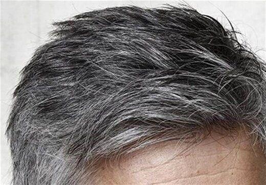 مهمترین دلایل سفید شدن مو در جوانان امروزی