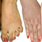 روش های ساده سفیدکردن پوست دست